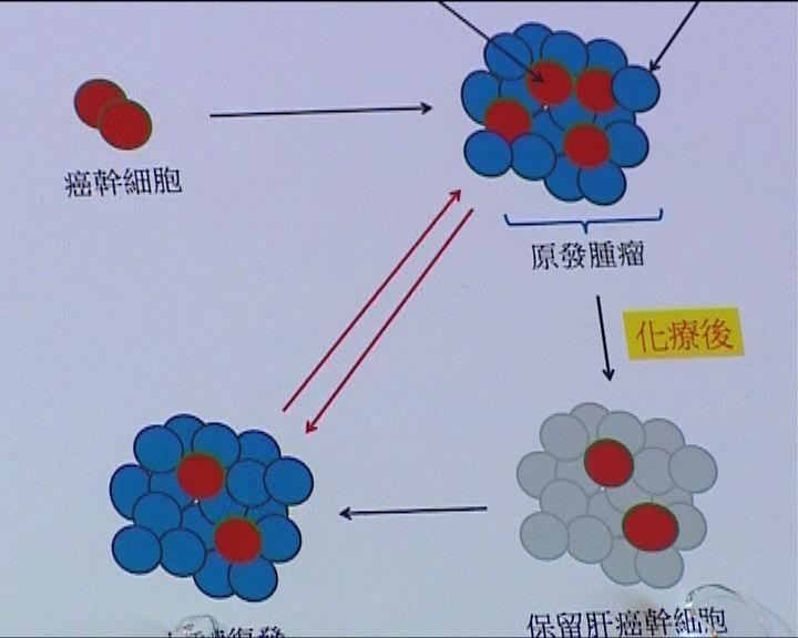 癌幹細胞CD24導致肝癌復發
