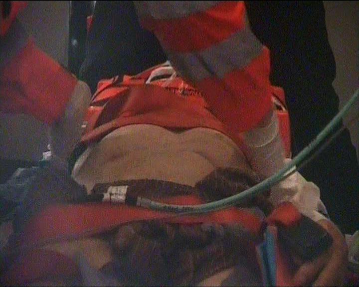 老翁疑被猴子襲擊失足被車撞倒