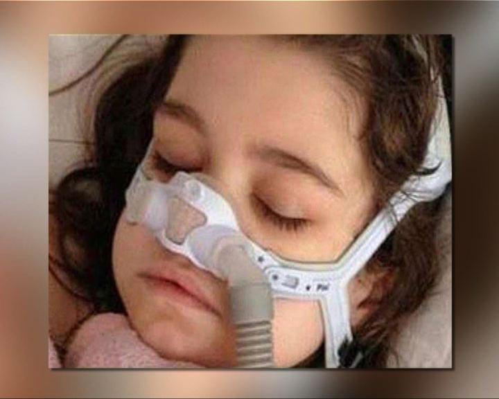 環球薈報:費城女孩破例移植成人肺