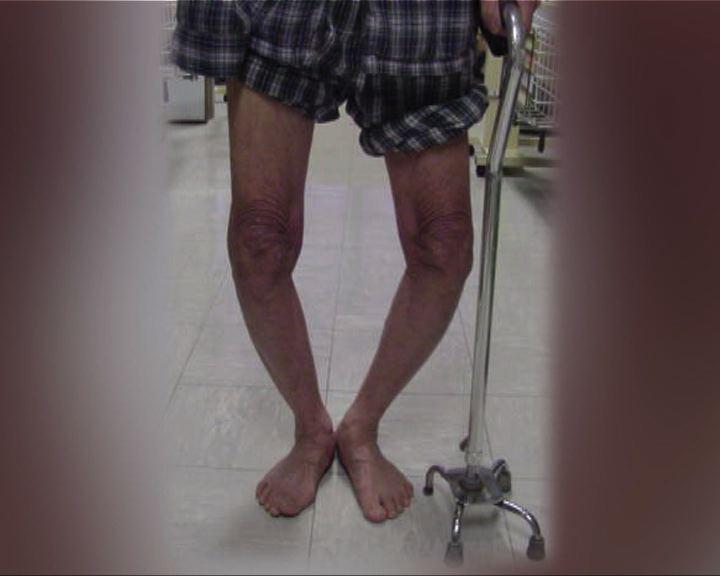 杏林在線:膝關節炎「O形腳」