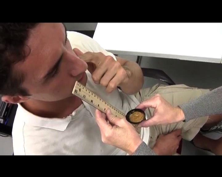 研究發現嗅花生醬可診斷腦退化