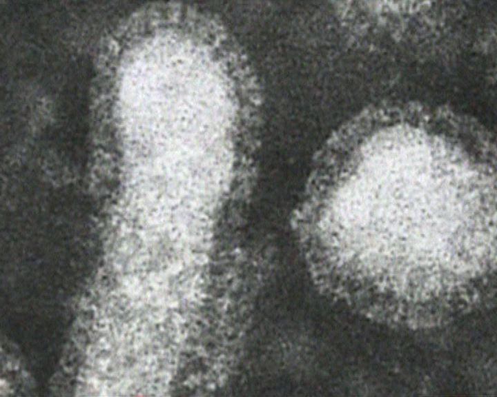 日本:H7N9由三種基因組成