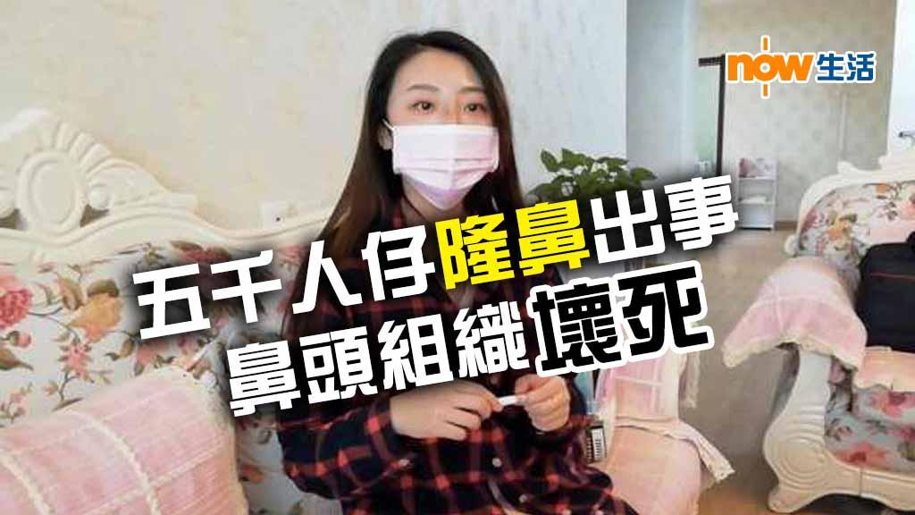 內地婦5000人仔隆鼻 鼻頭壞死使多3萬未搞掂