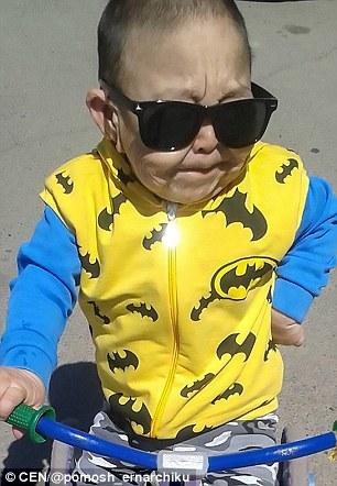 奇幻逆緣真人版!哈薩克6歲童滿面皺紋似阿伯