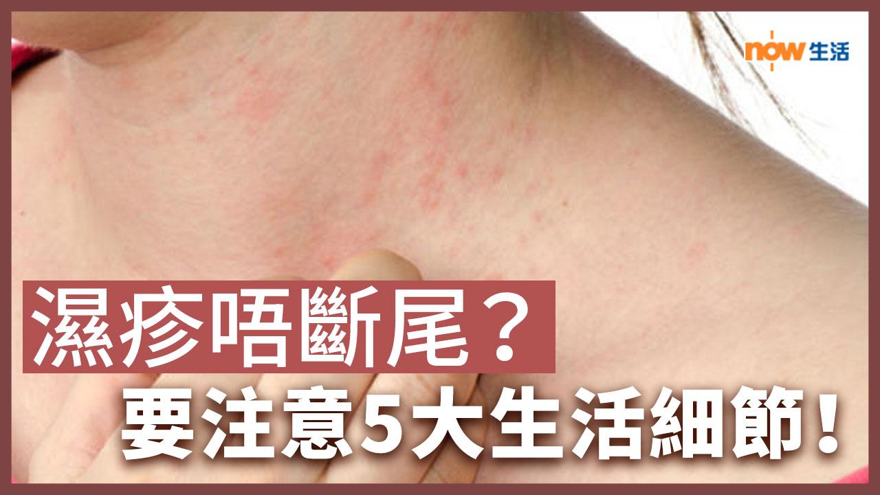 〈好Heal〉濕疹一直好不了?要注意5大生活細節!