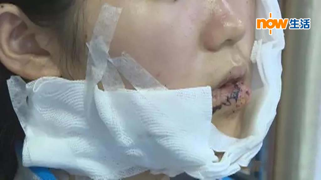 【不安片段】深圳美容院女學徒被猥褻 遭利刀毀容縫70針