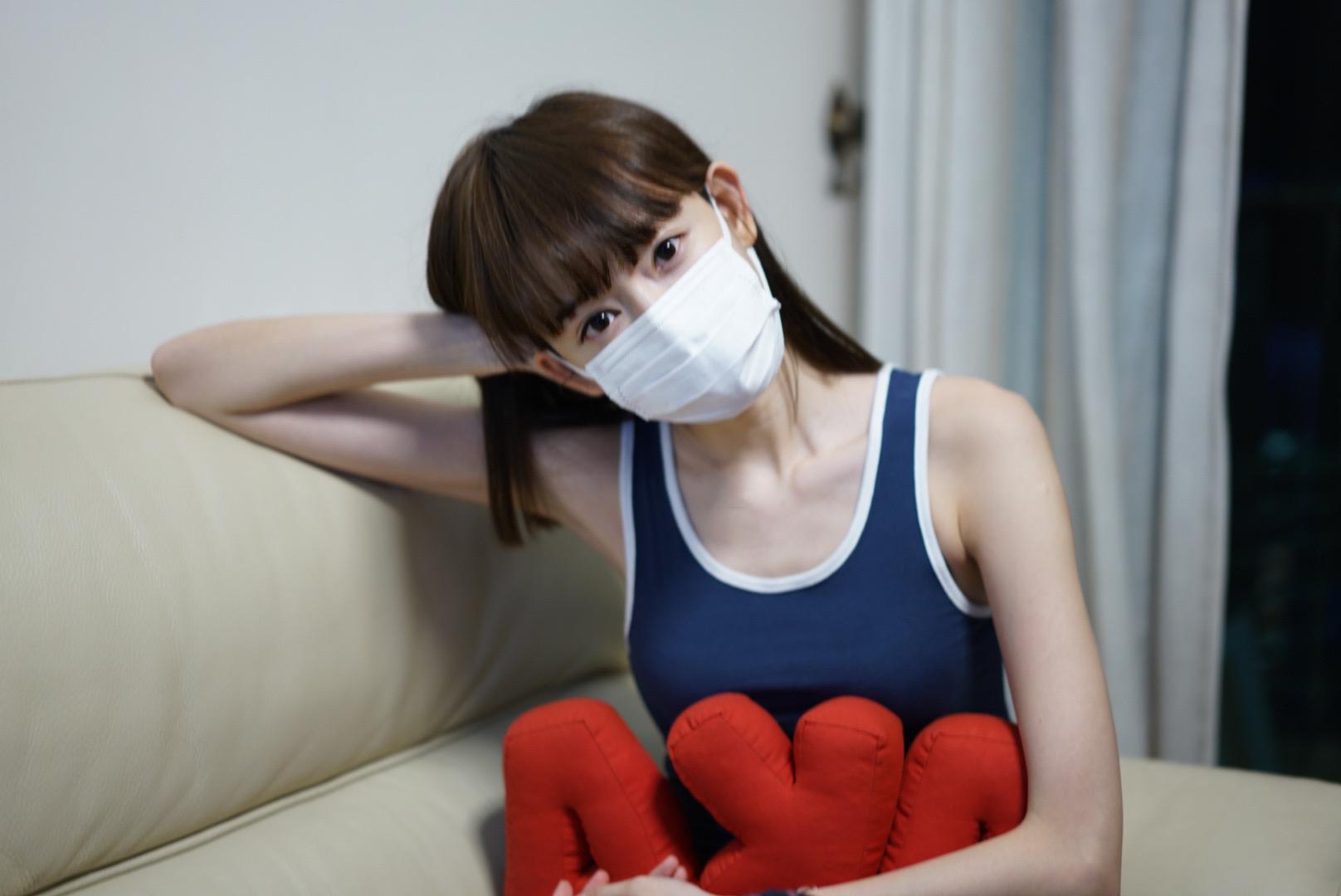 【被狗咬縫9針】Aka@SG康復進度理想 為保靚樣狂搽去疤膏