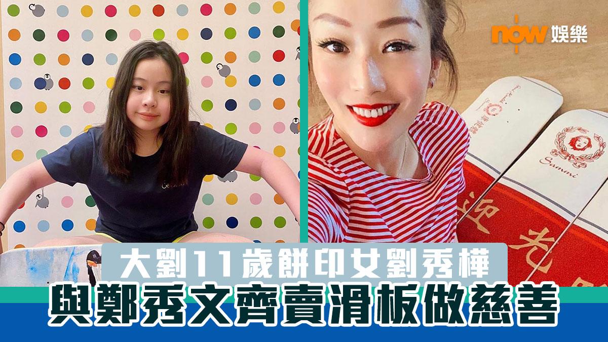 大劉11歲餅印女Josephine 孖鄭秀文賣滑板做慈善