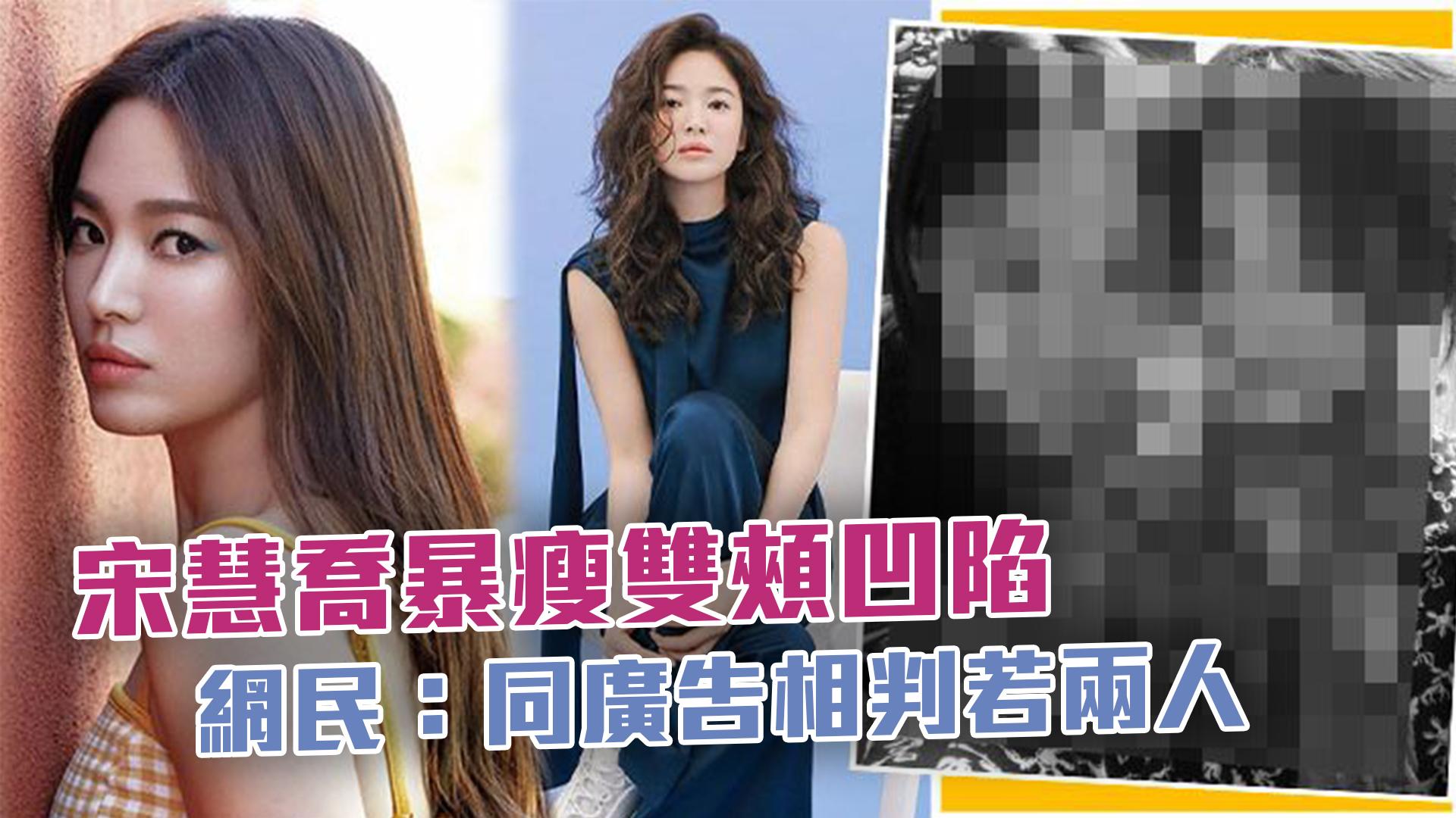 宋慧喬暴瘦雙頰凹陷 網民:同廣告相判若兩人