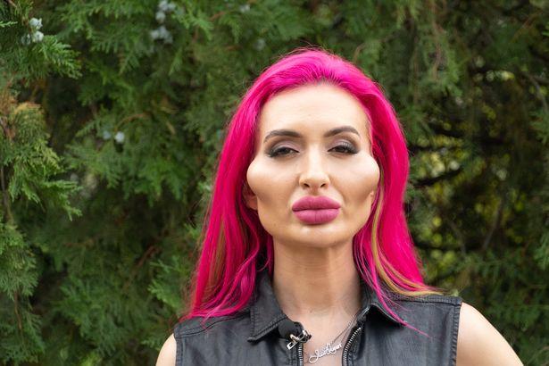 【整上癮】烏克蘭網紅整容顴骨大過雞蛋:希望可以更大