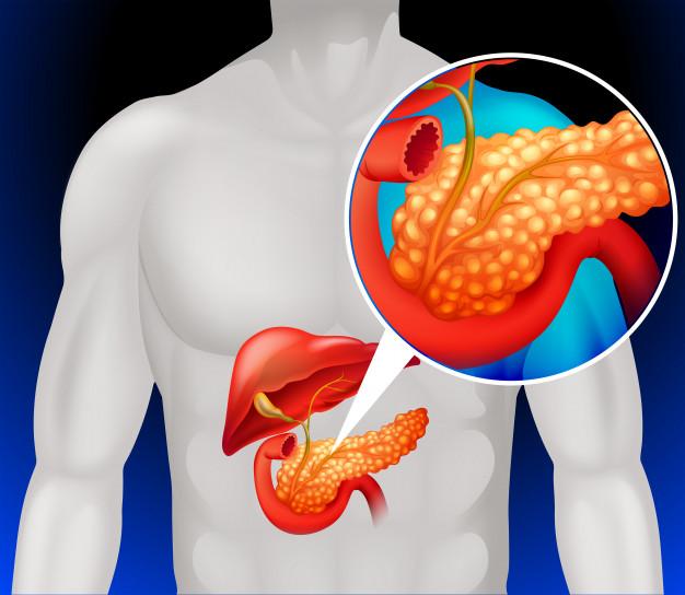 胰臟癌六大徵兆知多點 中大最新研究揭有全球上升及年輕化趨勢