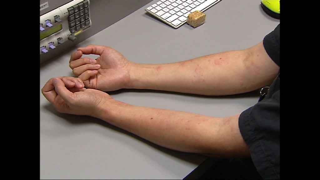 過敏學會指約兩成人曾患蕁麻疹