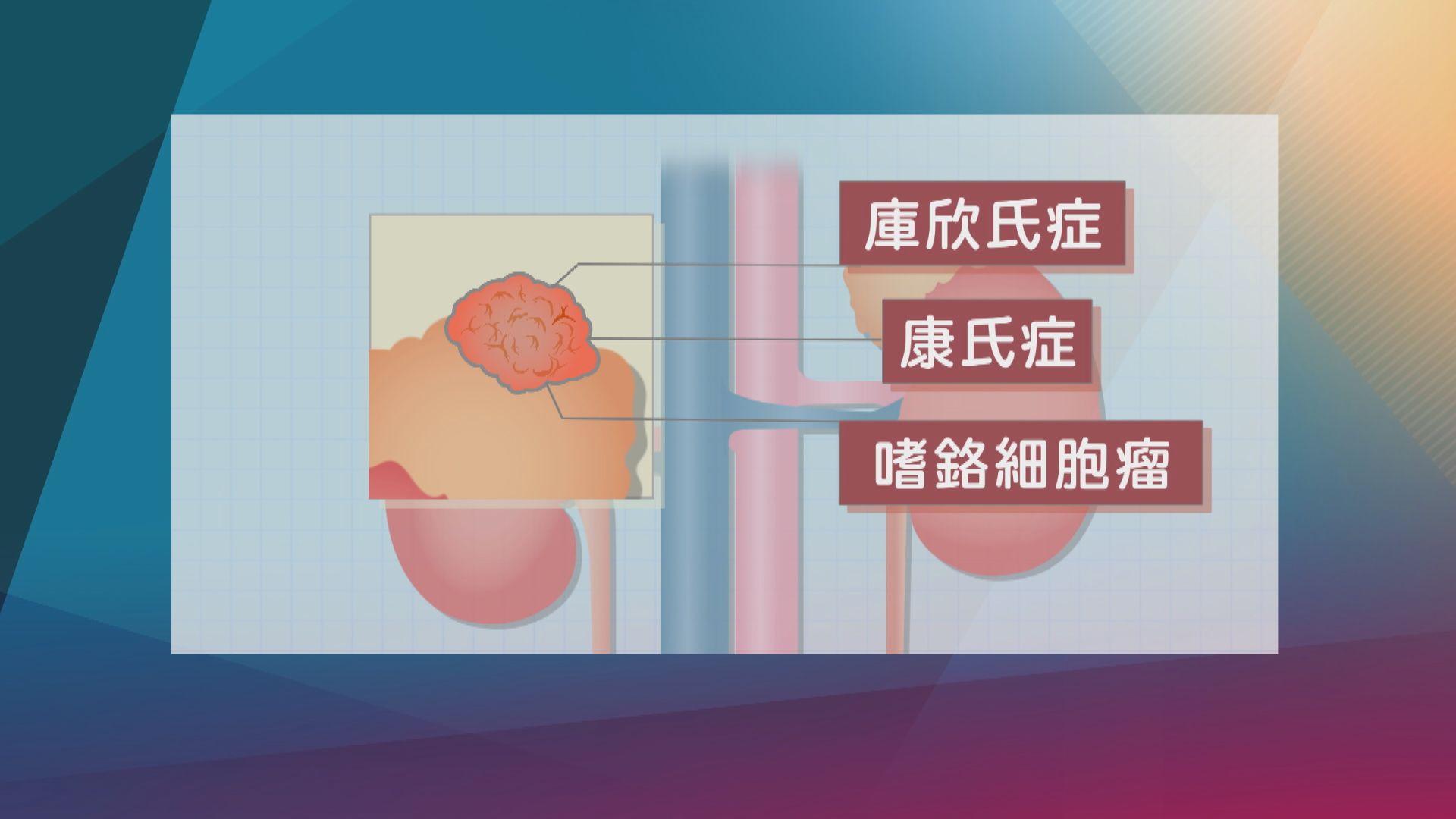 【杏林在線】腎上腺瘤與荷爾蒙失調