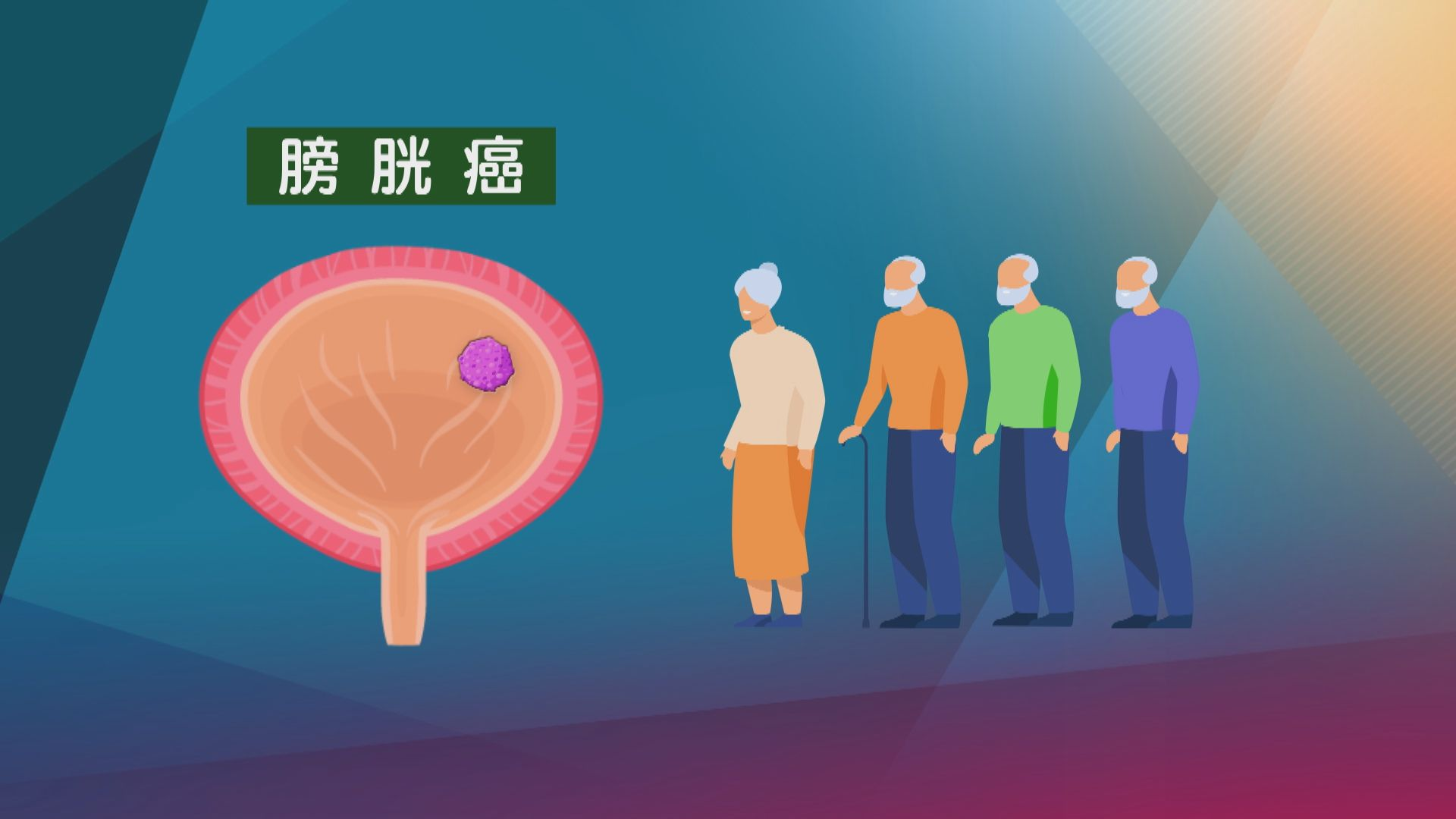 【杏林在線】無痛血尿與膀胱癌