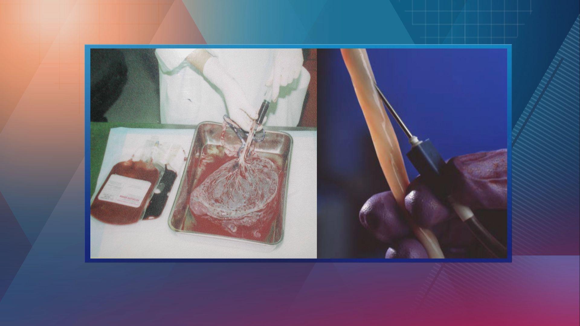 【杏林在線】 臍帶血有用嗎?