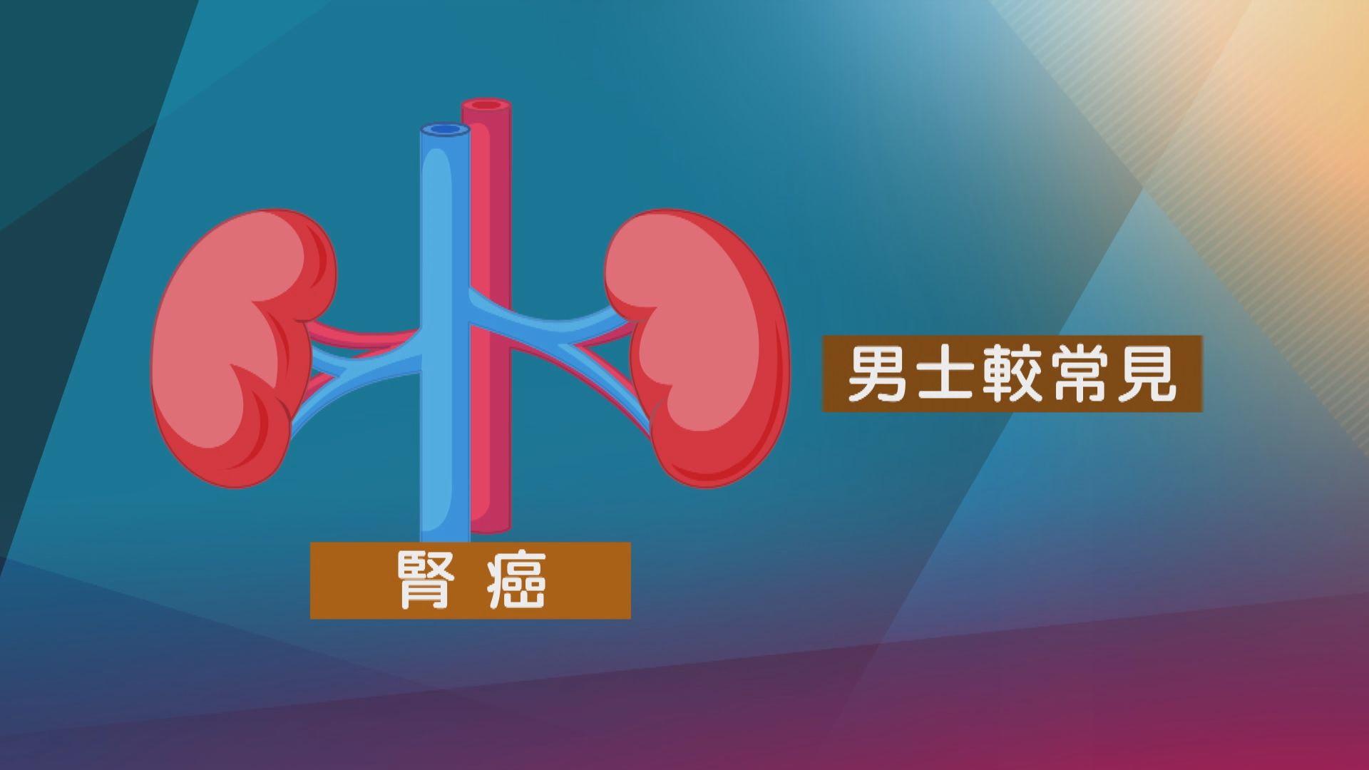 【杏林在線】不易察覺的腎癌