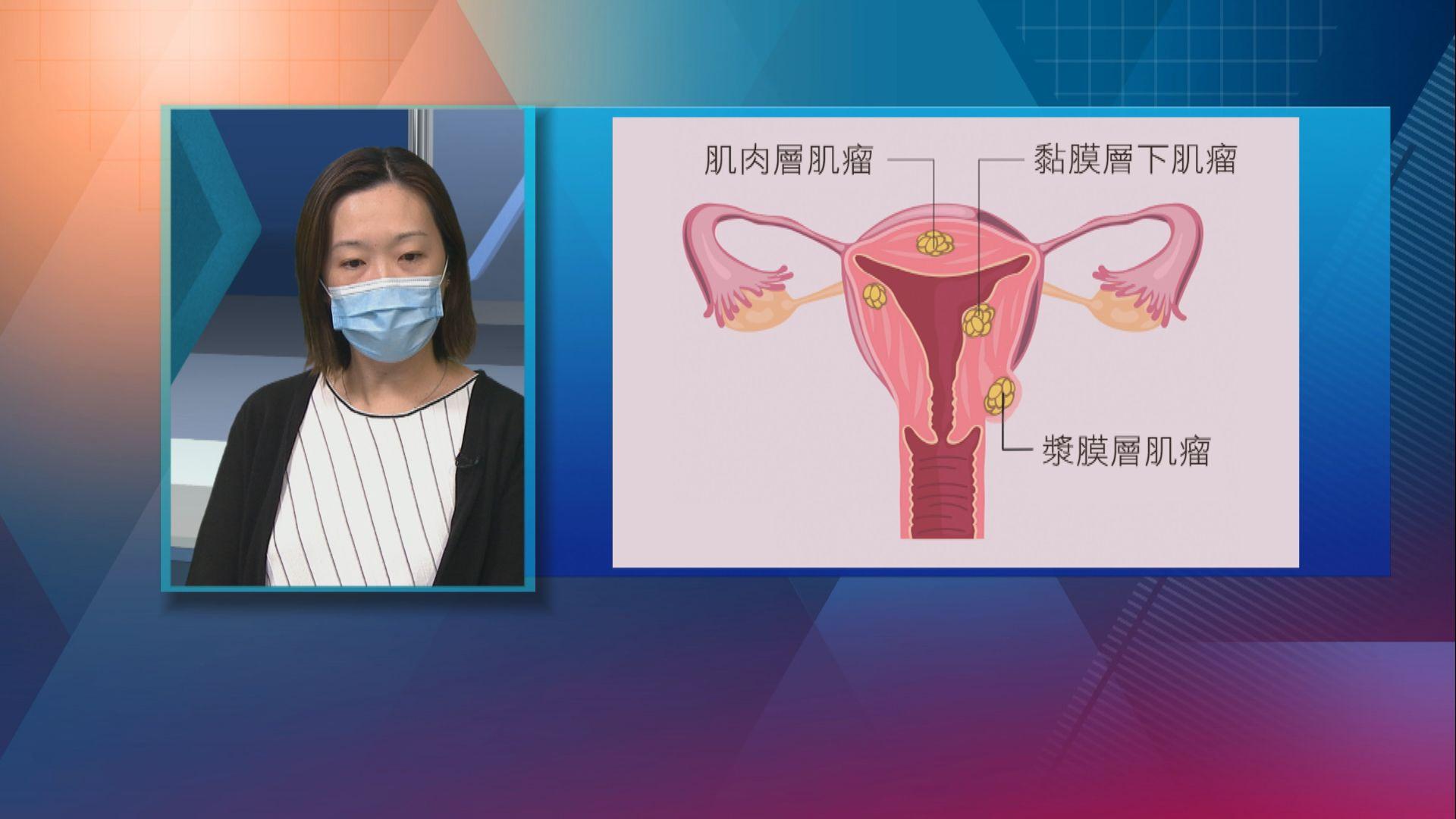 【杏林在線】認識子宮肌瘤