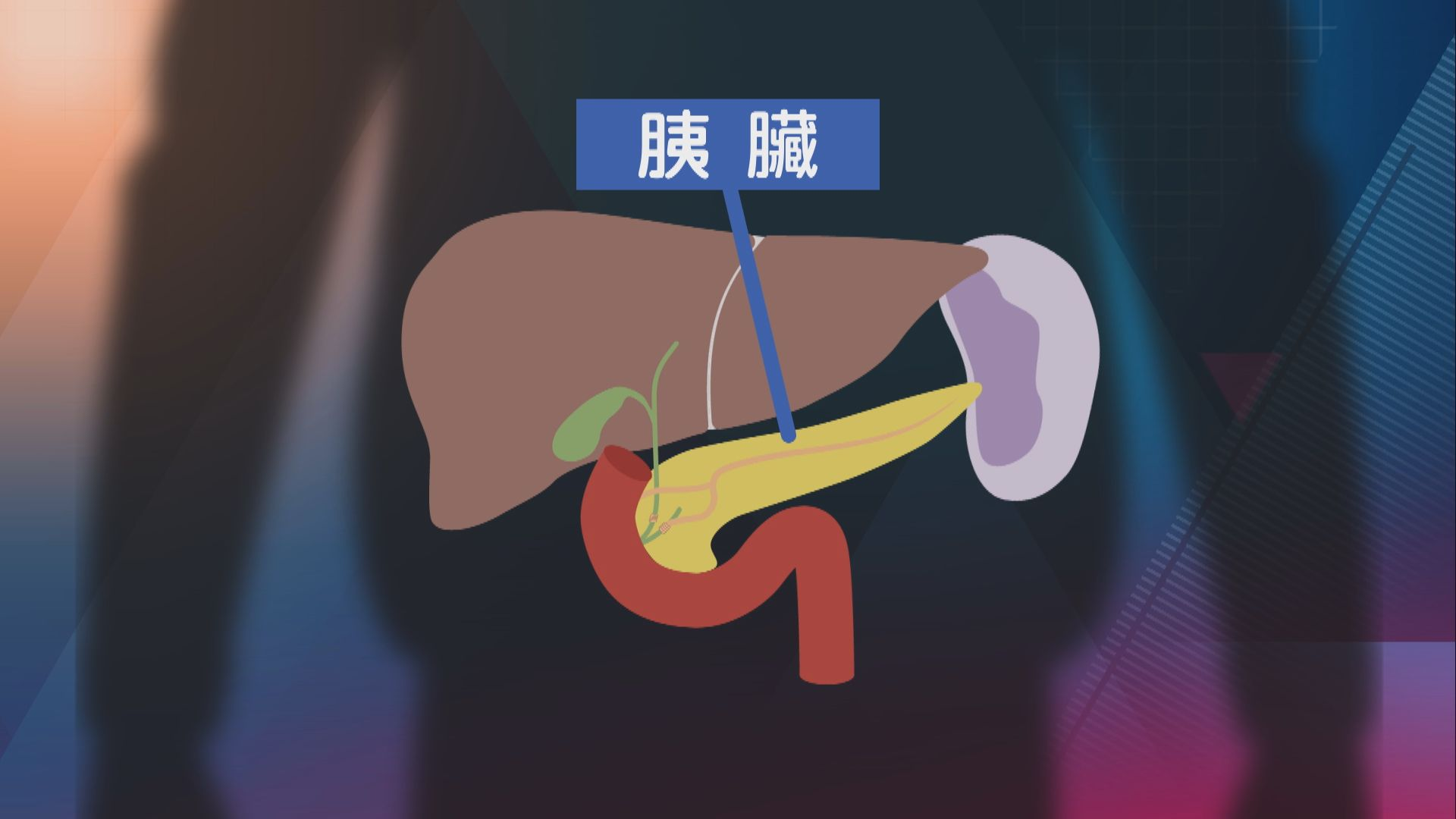 【杏林在線】悄悄來襲的胰臟癌