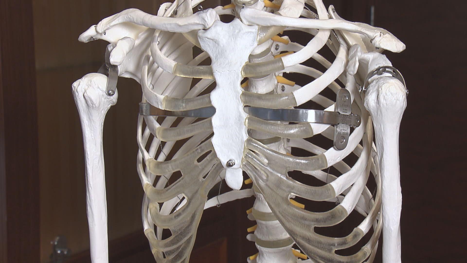 【杏林在線】凹陷的胸口