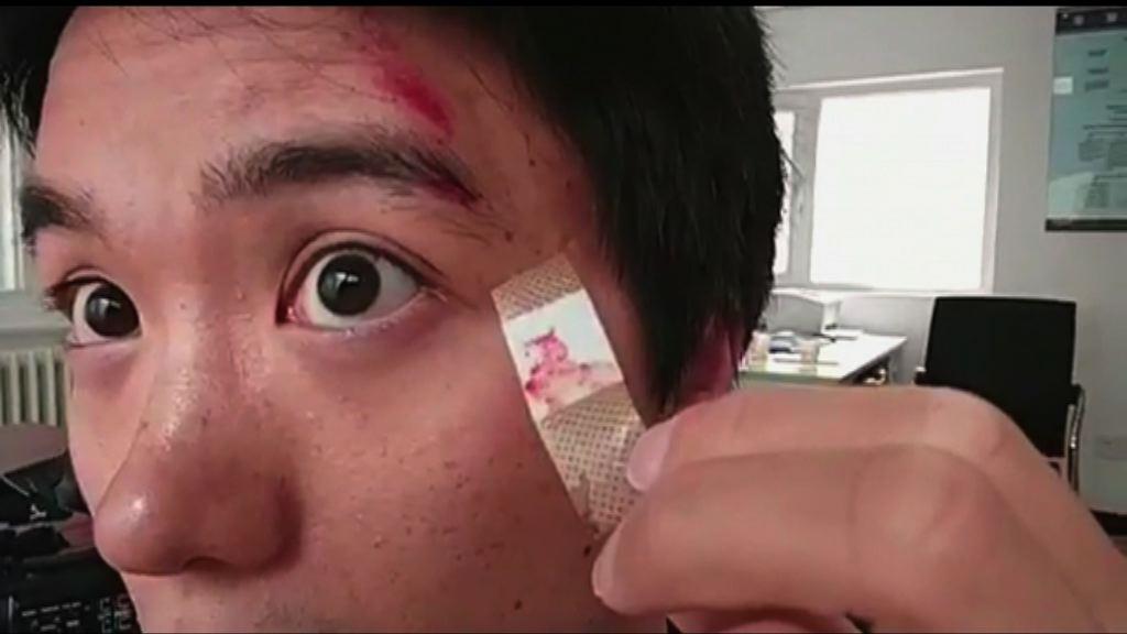 本台駐京攝影師額頭受傷 遭扣留逾兩小時後獲釋