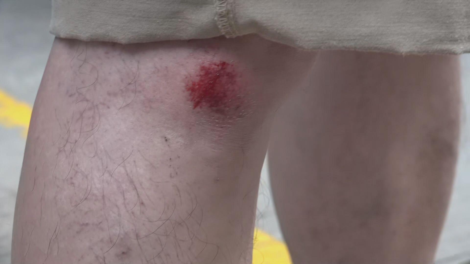 銅鑼灣刺傷警員案 警車押解被告時撞跌多名攝影師