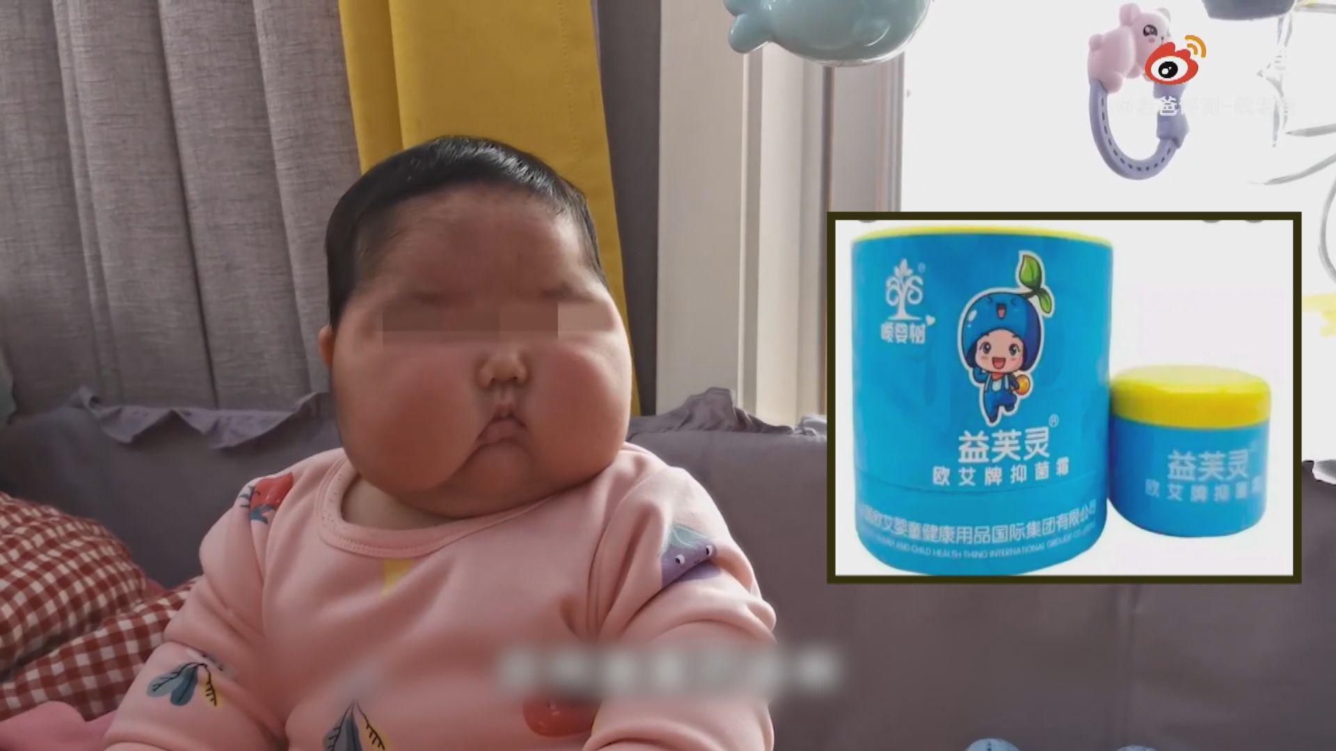 內地有嬰兒使用抑菌霜後出現「大頭娃娃」症狀