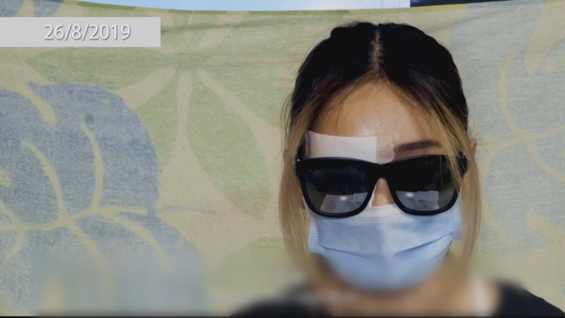 警方︰正嘗試獲取右眼受傷女子醫療報告