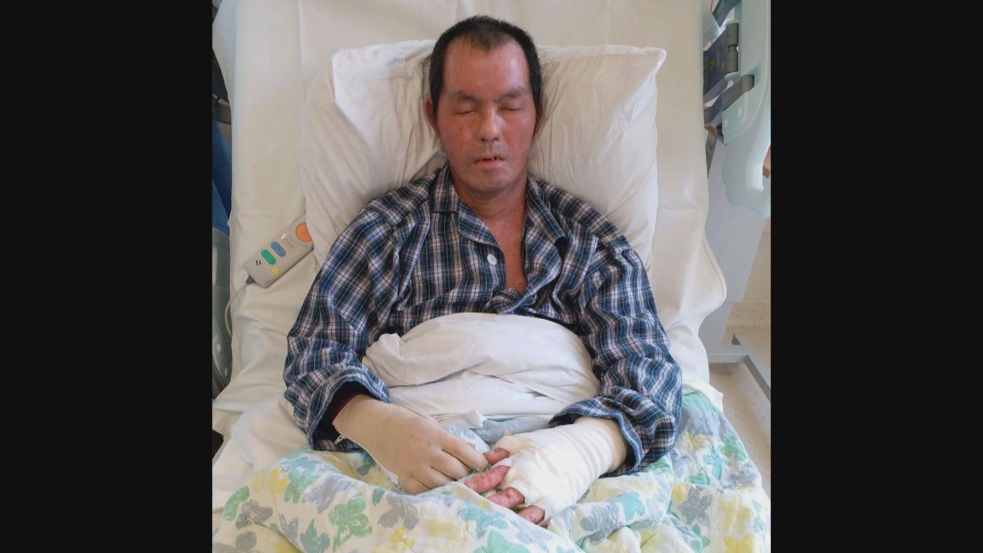 疑因政見被燒傷男子正排期做第四次植皮手術