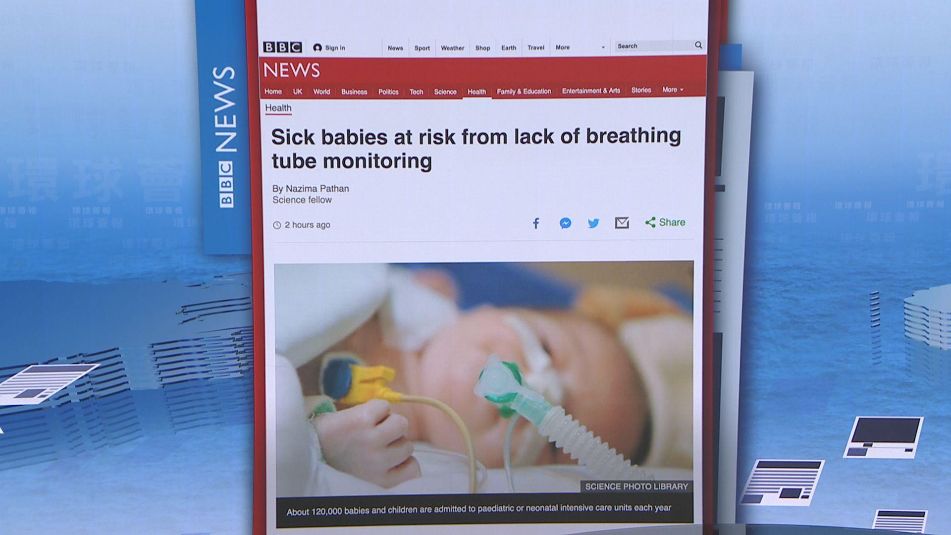 【環球薈報】英部分醫院無準確監測插管嬰兒