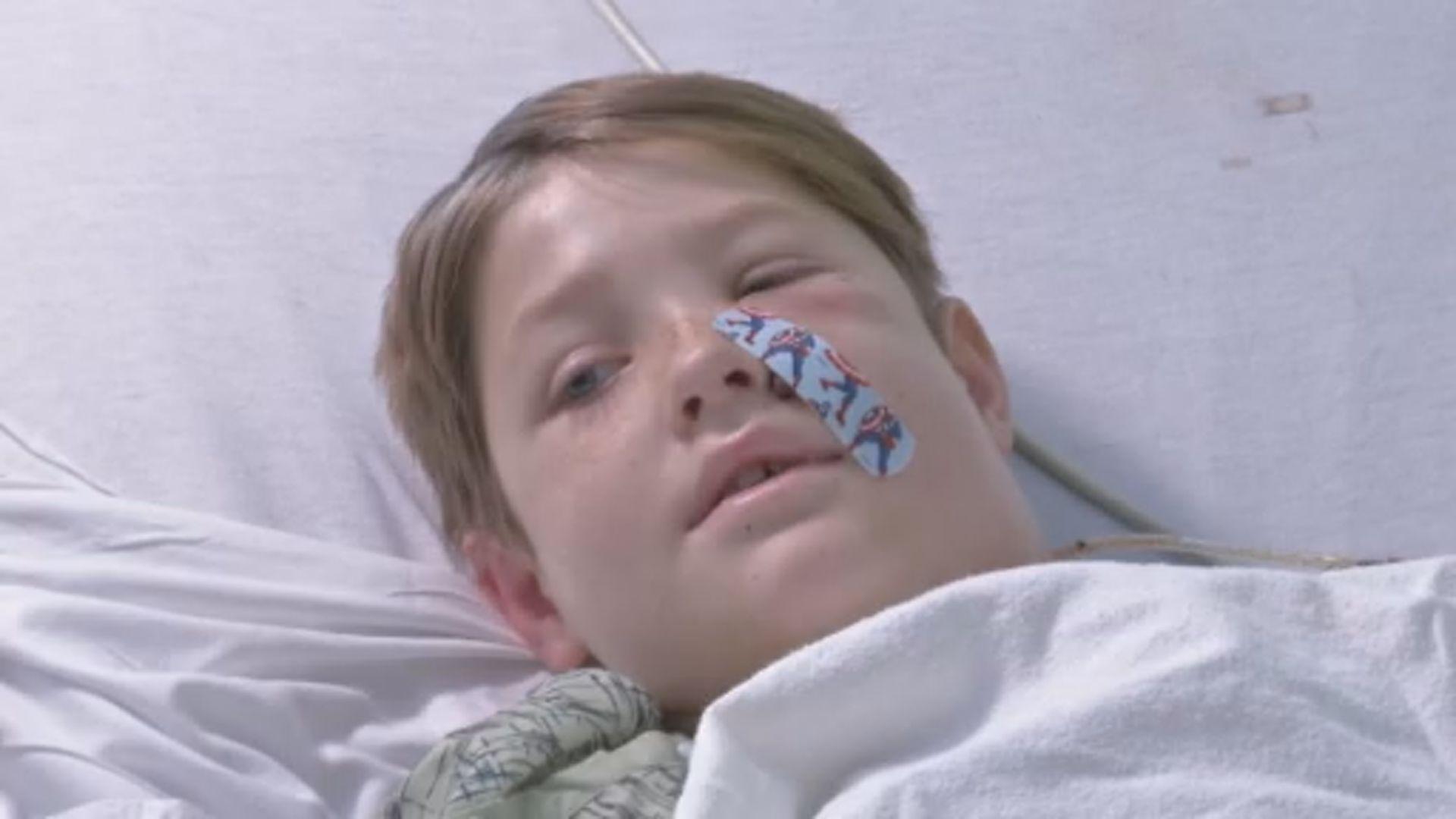 【環球薈報】美國男童遭鐵枝刺穿頭部大難不死