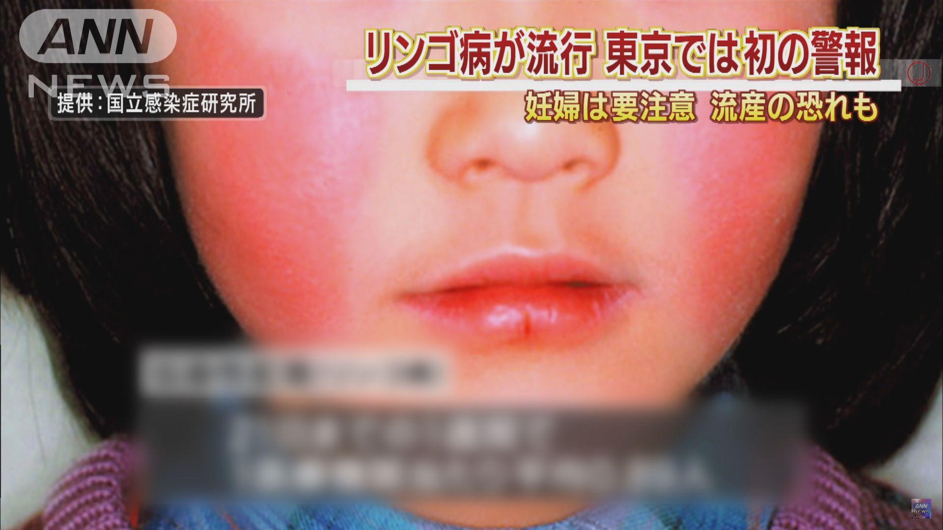 【環球薈報】蘋果病正在日本各地流行