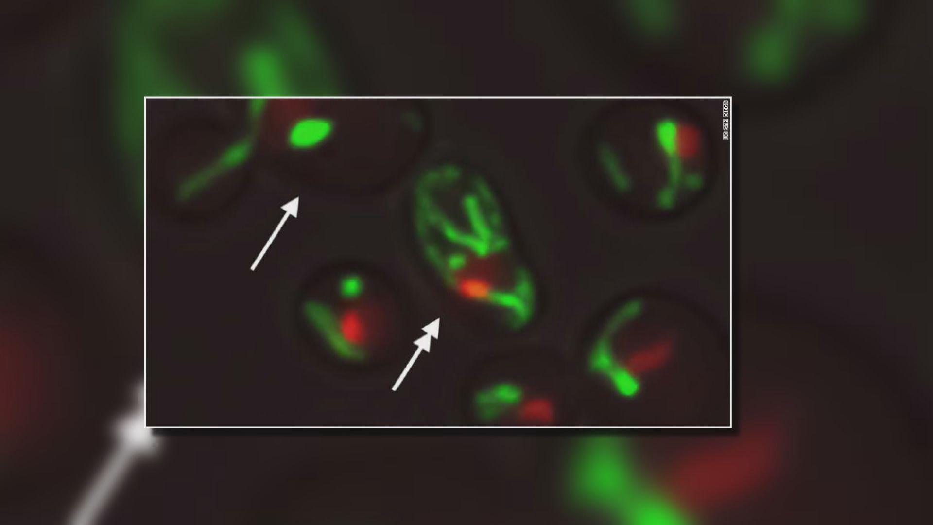 【環球薈報】科學家發現細胞老化「控制台」