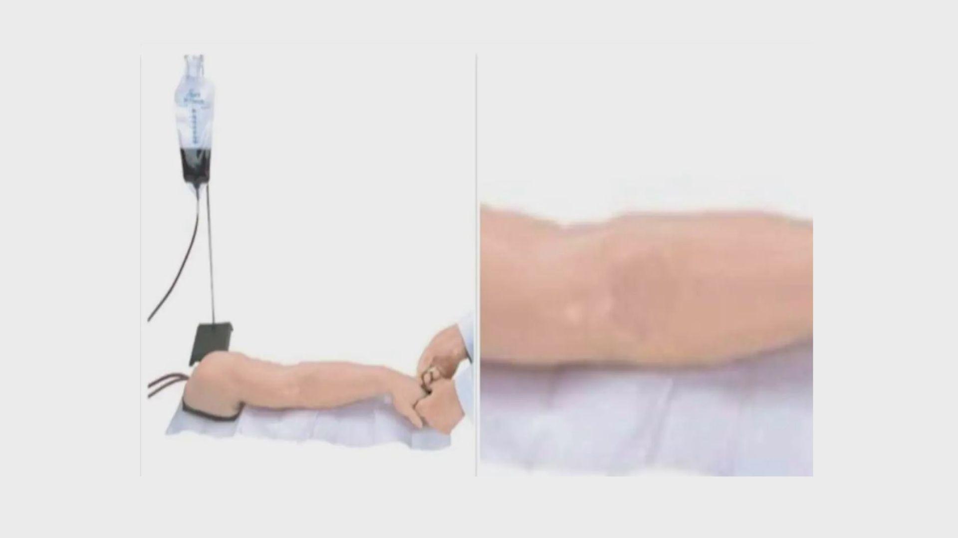 【環球薈報】網售九千元假手臂聲稱能騙取疫苗接種證明