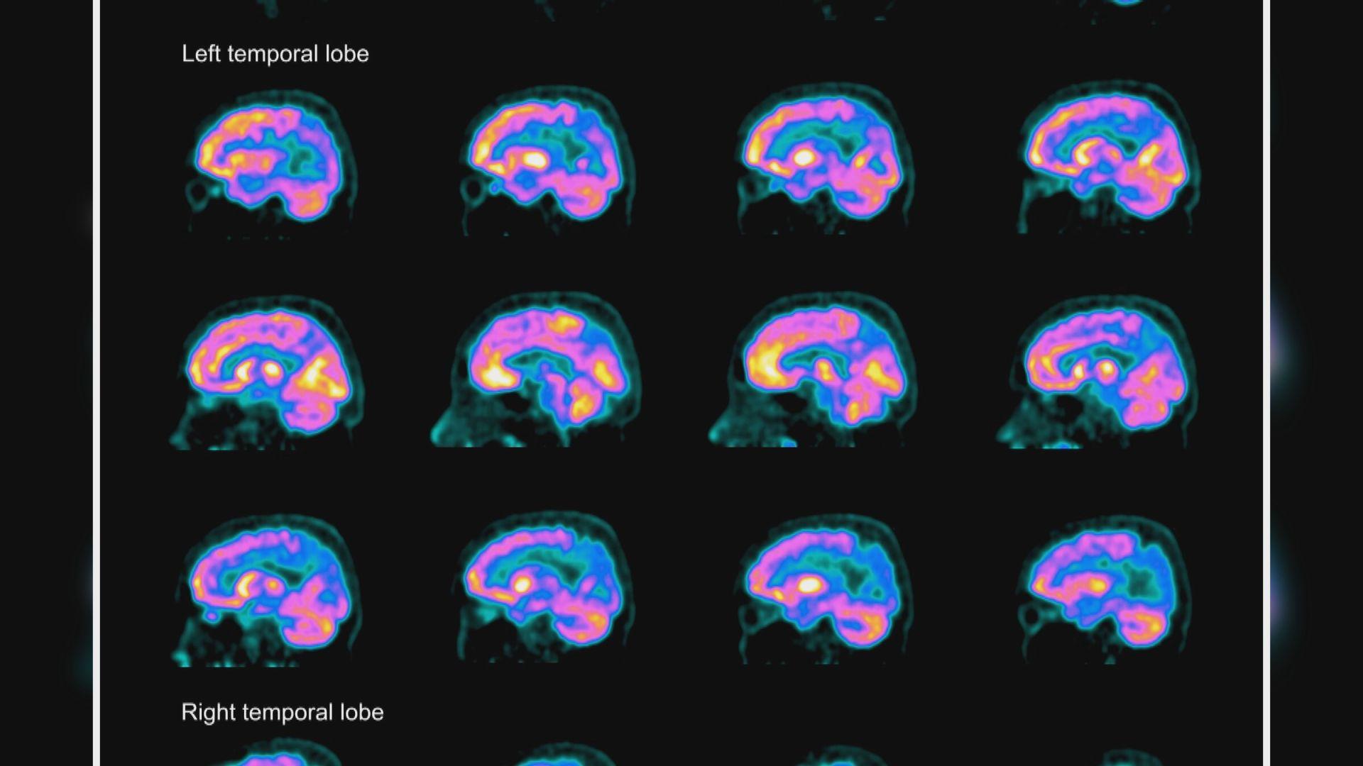 【環球薈報】研究發現新驗血方法能更準確測出認知障礙