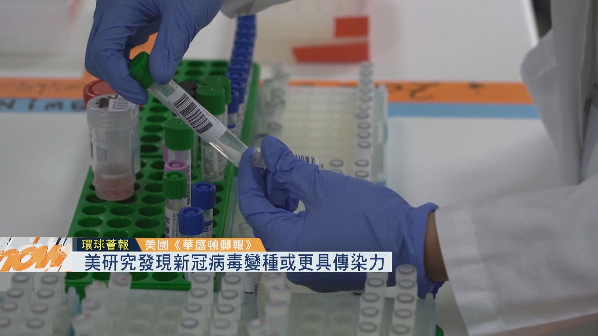 【環球薈報】美研究發現新冠病毒變種或更具傳染力