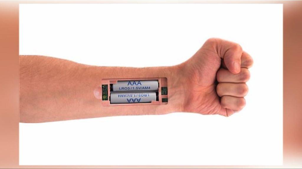 【環球薈報】新型彈性電池以含鹽溶液推動人工起搏器