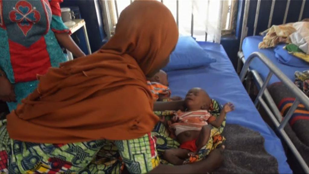 【環球薈報】聯合國指巴基斯坦嬰兒夭折率全球最高