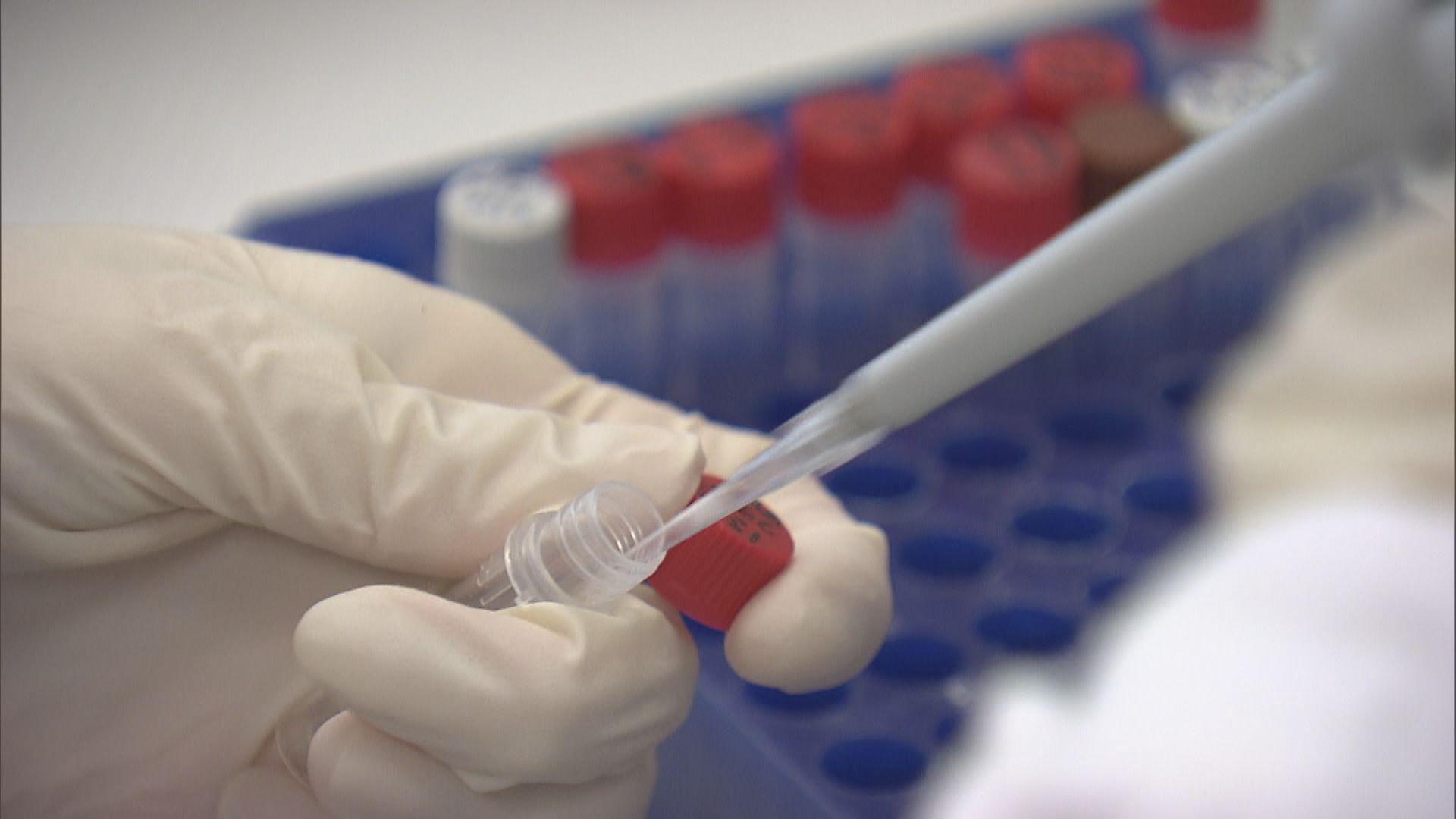 專家:坊間測試驗血為主 非有效檢測新冠病毒方法