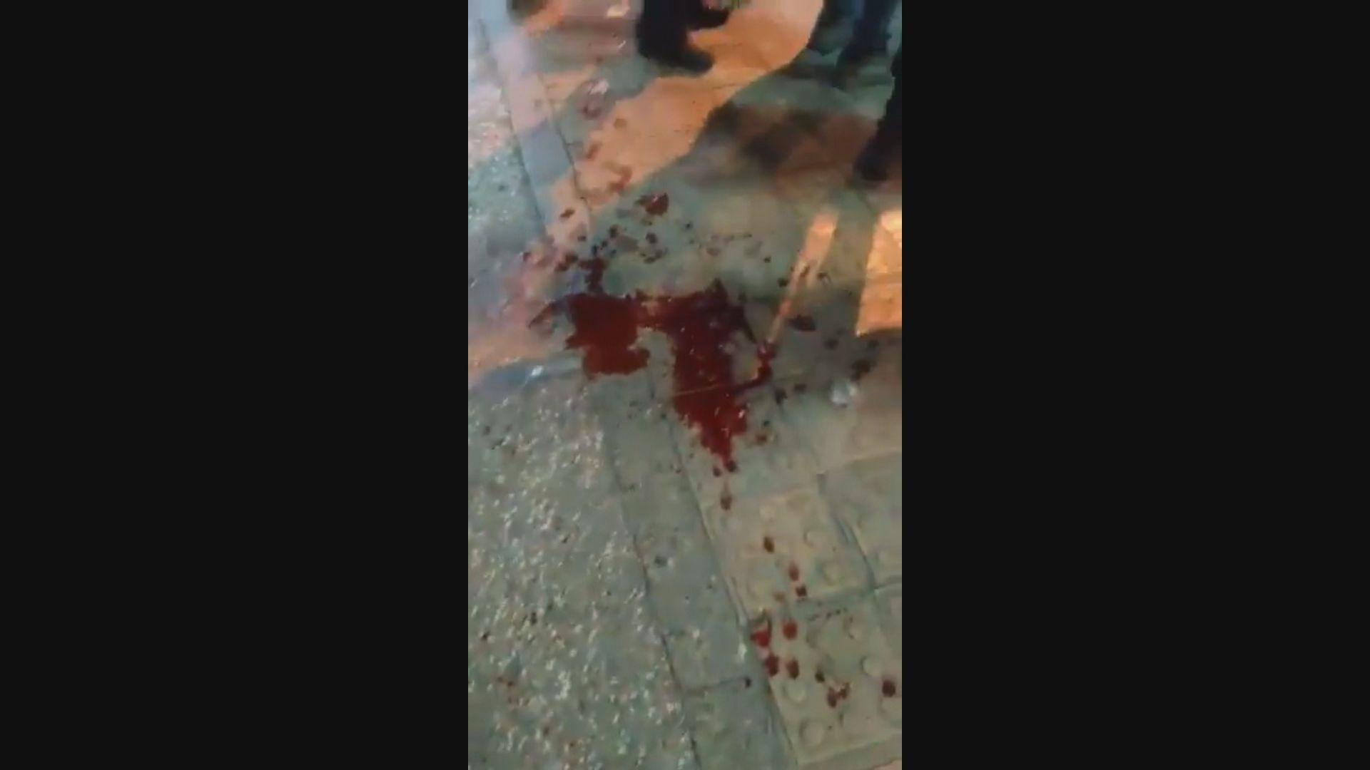消息指伊朗警方發射實彈擊中多名示威者