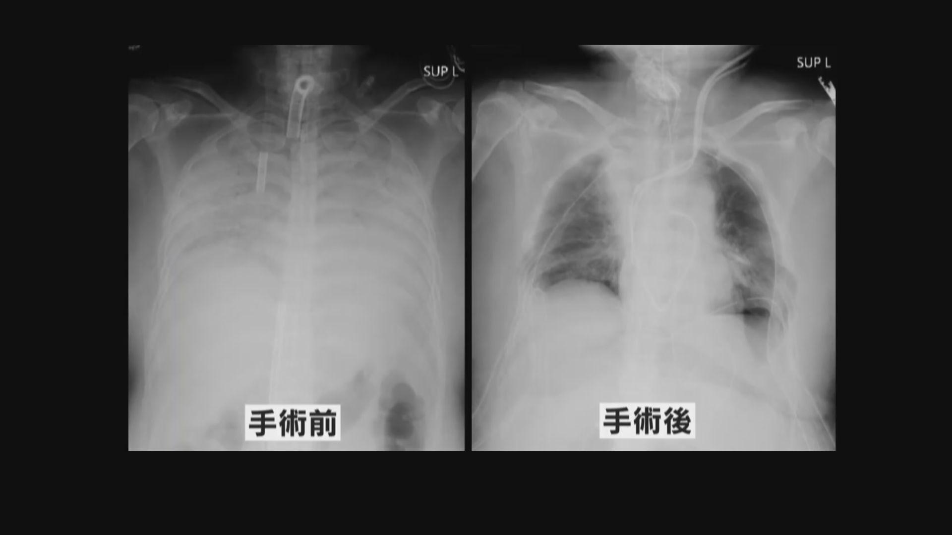 日本完成全球首個新冠病毒患者活體肺移植手術