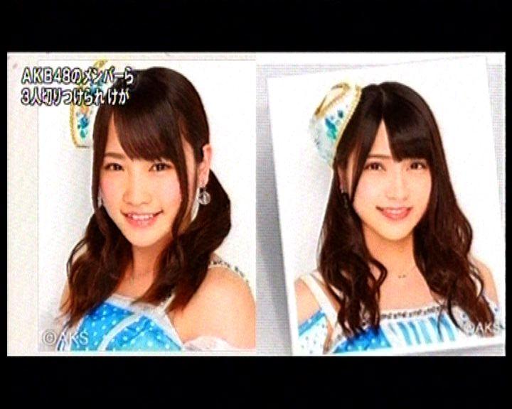 日本組合AKB48兩成員受傷