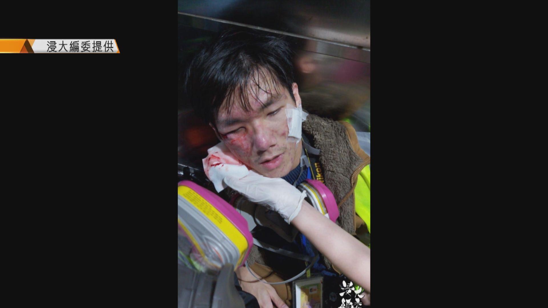 旺角有人縱火堵路 浸大編委記者遭催淚彈擊中右眼受傷
