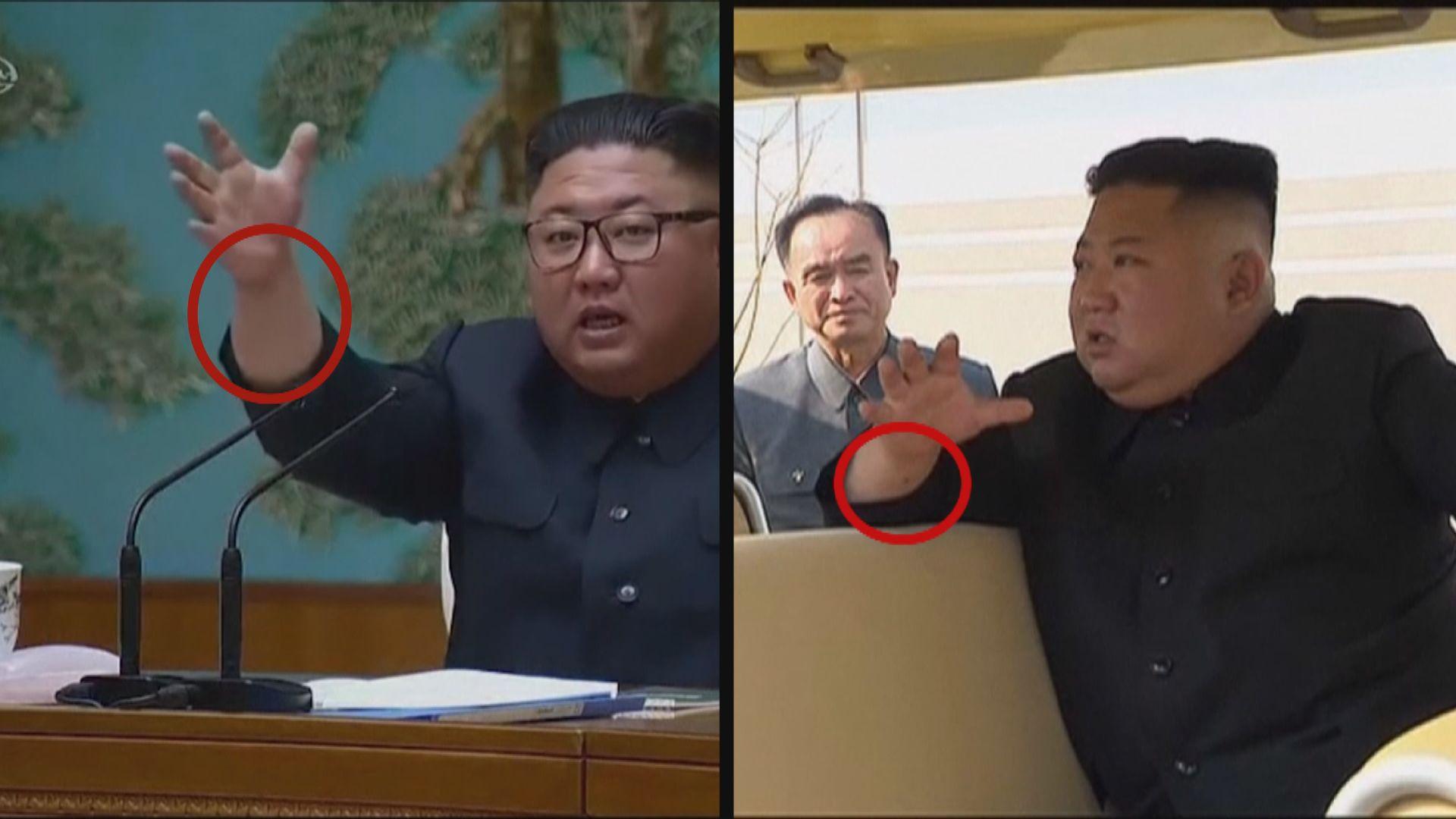 南韓總統府官員:金正恩無動過任何手術