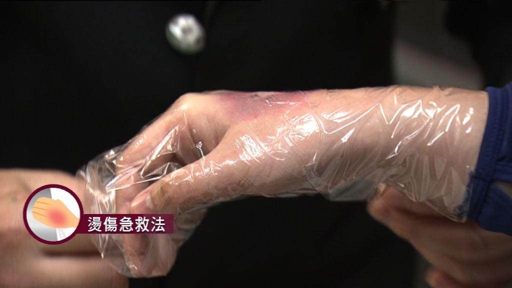 【杏林在線—健康1分鐘+】燙傷急救法