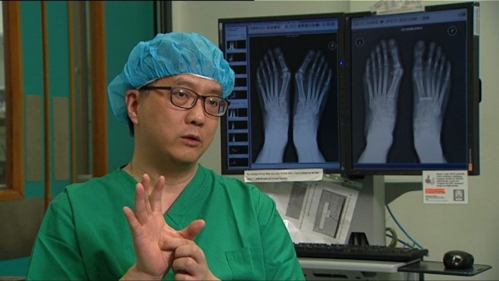 【杏林在線】拇趾外翻矯形手術