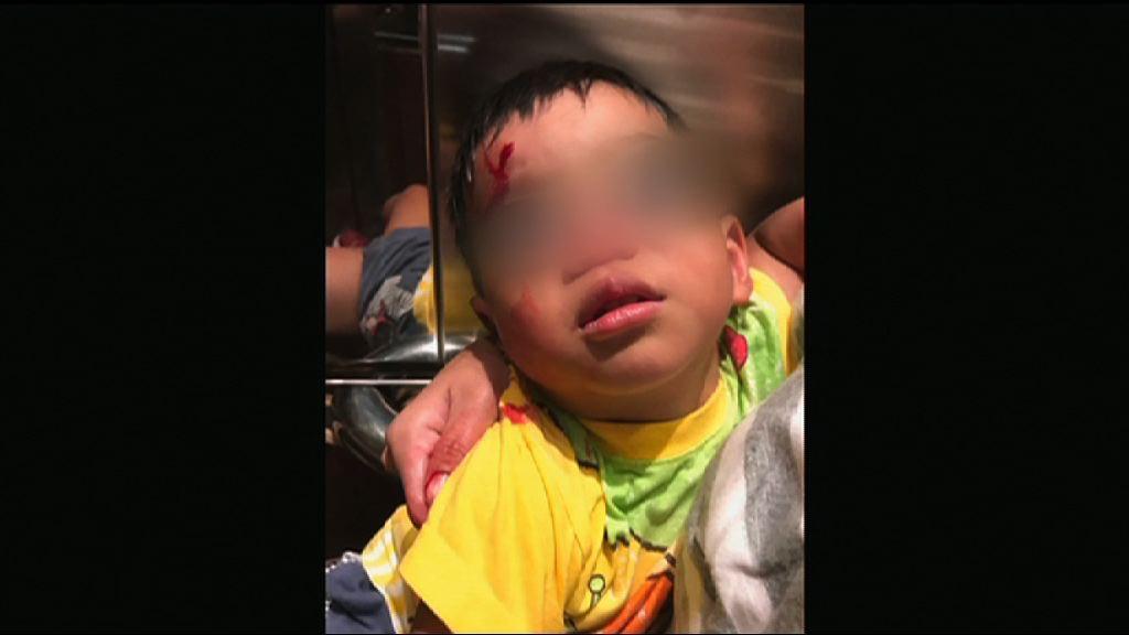 兩歲男童疑被氣槍射傷 重案組跟進