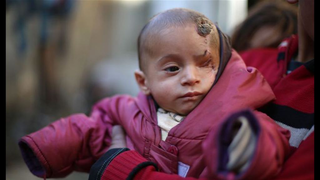 敘利亞男嬰獨眼照引起國際迴響