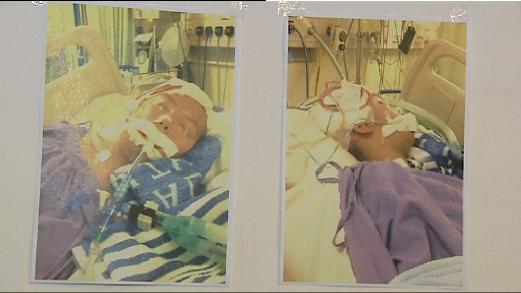 少女聯合醫院洗血被刺穿動脈後中風