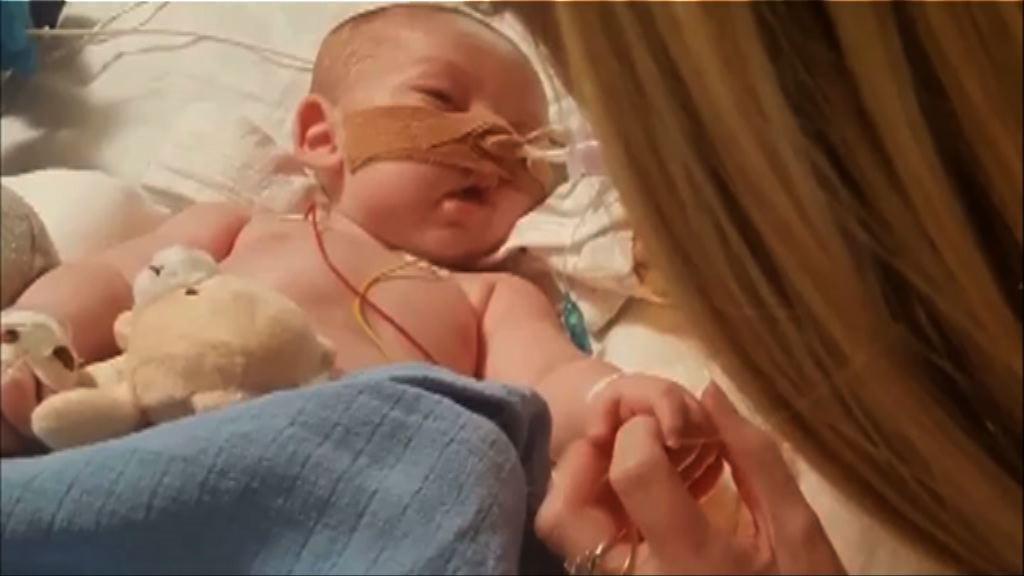 英男嬰患罕見遺傳病或被安樂死
