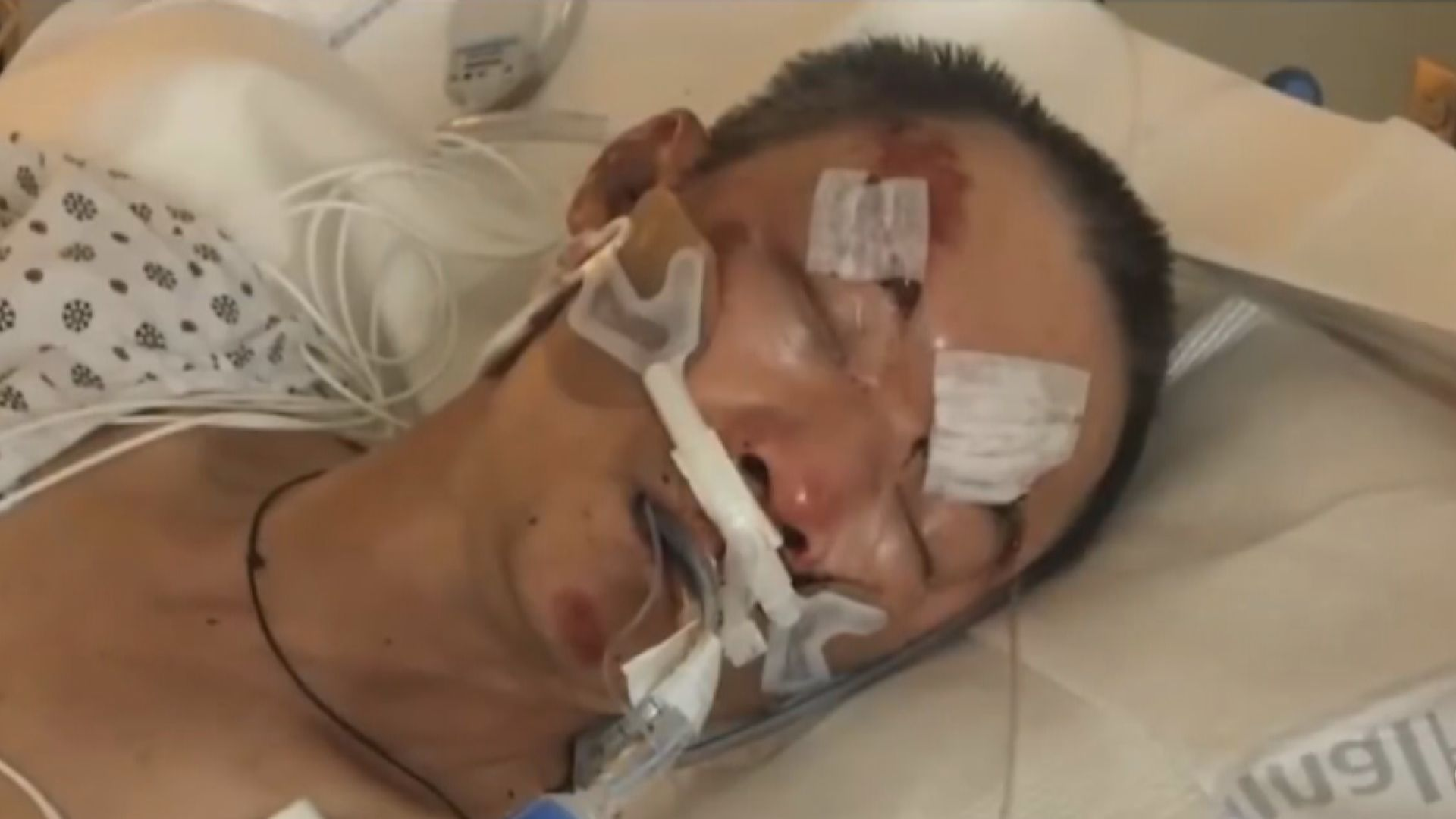 61歲華裔男子紐約街頭遇襲後重傷昏迷 情況危殆
